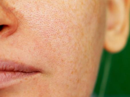 Manchas na pele: quais os tipos e como prevenir