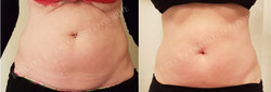 Ultimate Body Contouring Package