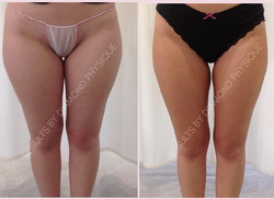 Ultimate Body Contouring