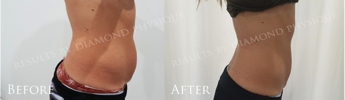 Ultimate Body Contouring Treatment