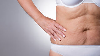 Radiofrequency Skin Tightening Diamond Physique