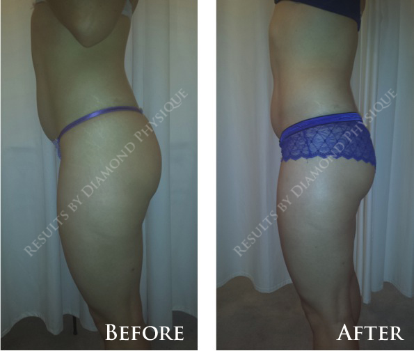Brazilian Butt Lift Treatment