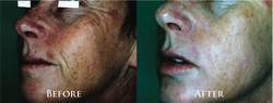 Microdermabrasion & Oxygen Therapy