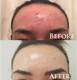 Microdermabrasion + OxyPeel & Sculpt