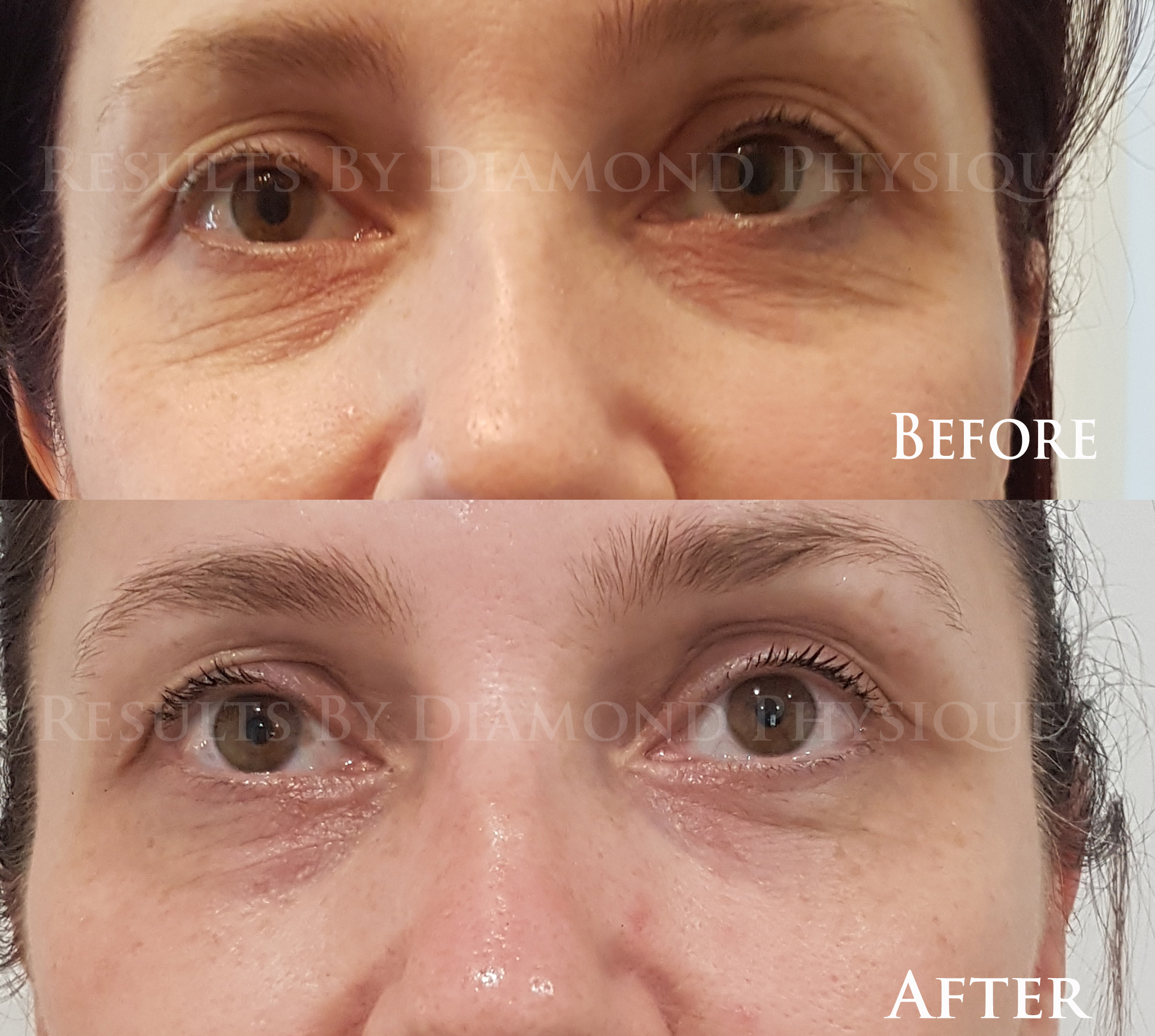 Eye Zone Treatment