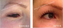 Eye Zone Treatment