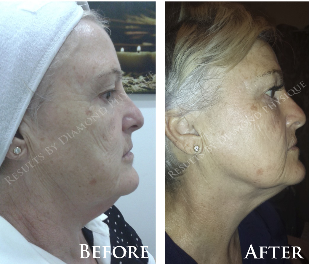 Ultimate Face Lift Treatment