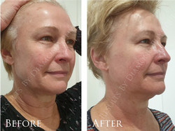 Ultimate Face Lift
