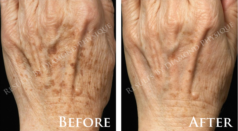 Rejuvenating Hand Treatment