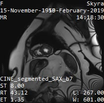 Series_026_CINE_segmented_SAX_b7.wmv