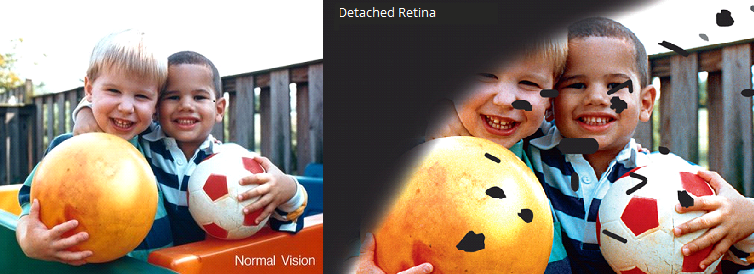 detached retina2.png