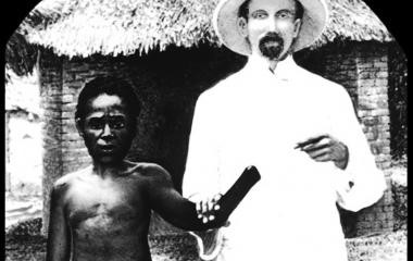A Victim of King Leopold's Cruelty