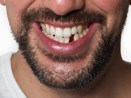 Araştırmacılar Dişleri Yeniden Çıkarmanın Bir Yolunu Buldu