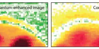 Yeni Kuantum Mikroskobu 'Görmesi İmkansız' Yapıları Ortaya Çıkarabiliyor