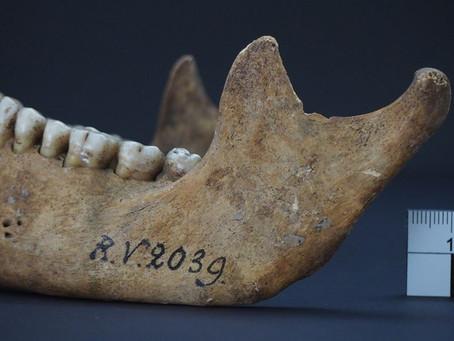 Antik İnsan Kemikleri Vebanın Bilinen En Eski Türünü Ortaya Çıkardı