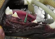 implante-e-prótese1