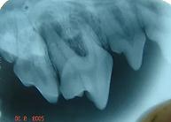 fistula-premolar2.png