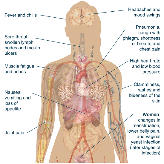 Diagram of symptoms of HIV infection