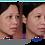 Thumbnail: Obagi Nu-DermTransformation Kit Norm-Dry (8 piece)