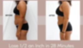 cryoskin lose inch B&A woman stomach .pn
