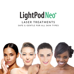 Neo---Safe-and-Gentle-all-skin-types