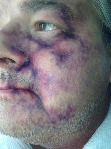 Bruise Makeup on actor, Ken Hudson Campbell