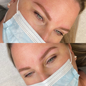 Tattooed eyebrows (powder brows)