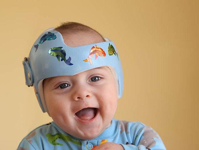 Baby_-Plagiocephaly_Helmet-732x549-Thumbnail.jpg