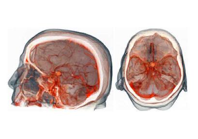 МР-ангиография артерий головного мозга, что это такое?