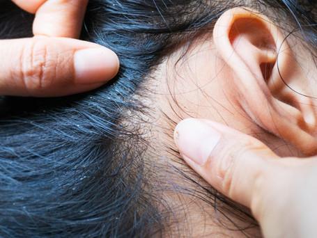 Head Lice & Nits