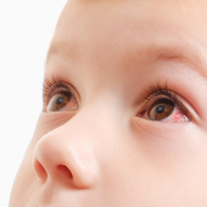 Conjunctivitis: (Pink eye) Bacterial, Viral, Allergic & Other Types