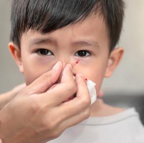 Nosebleeds (Epistaxis)