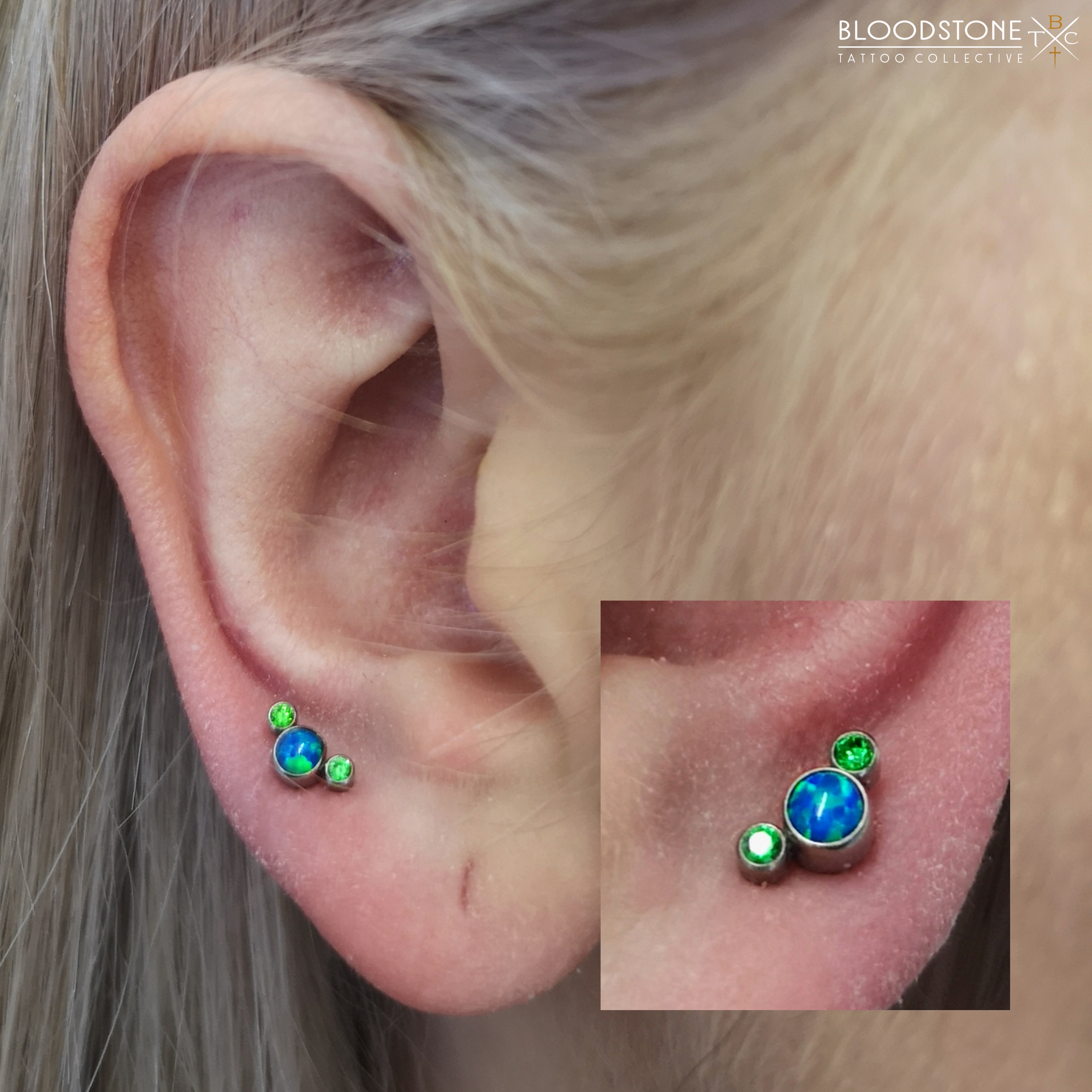 "Healed Lobes with The ""Green Moon Coral"""