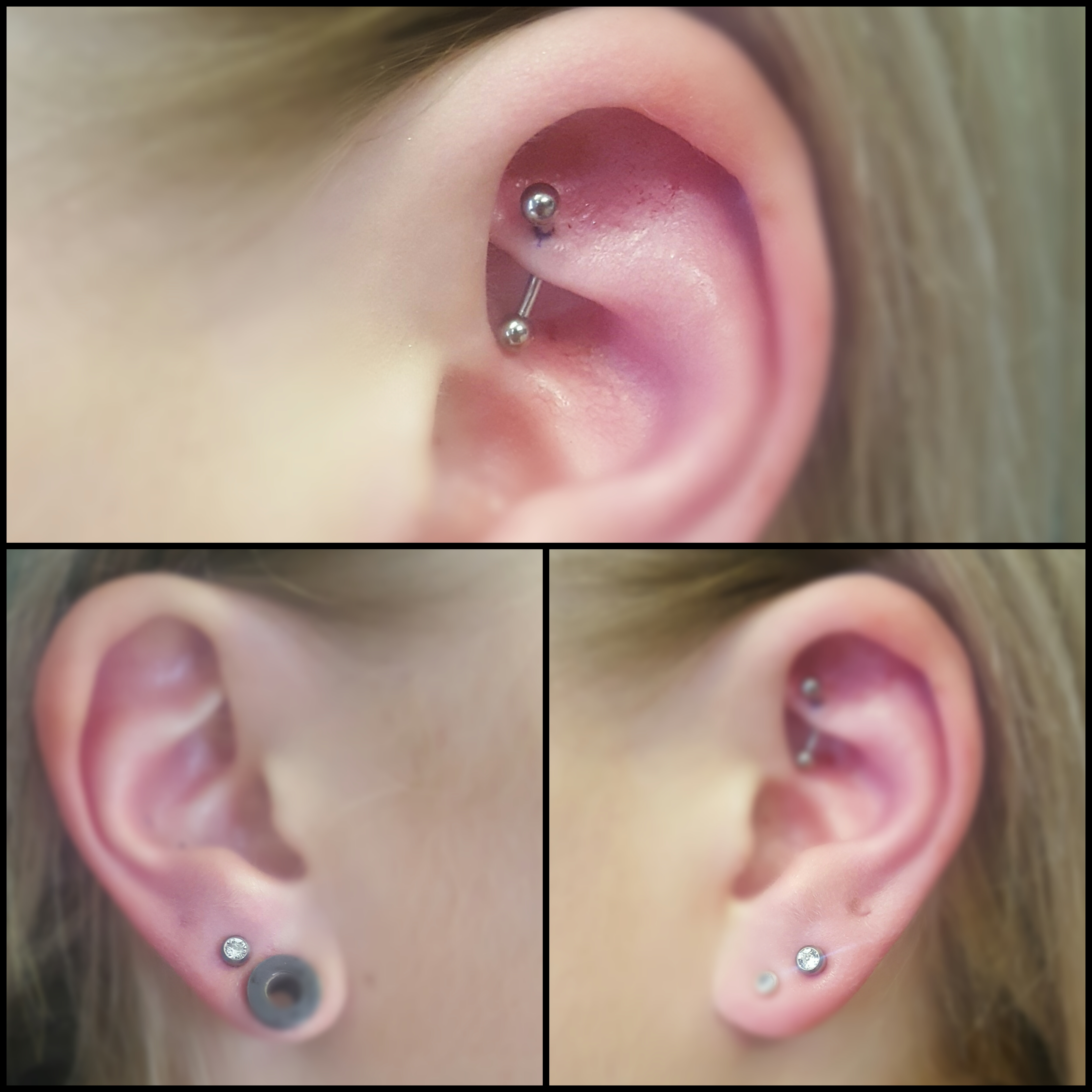 Rook and Upper lobes