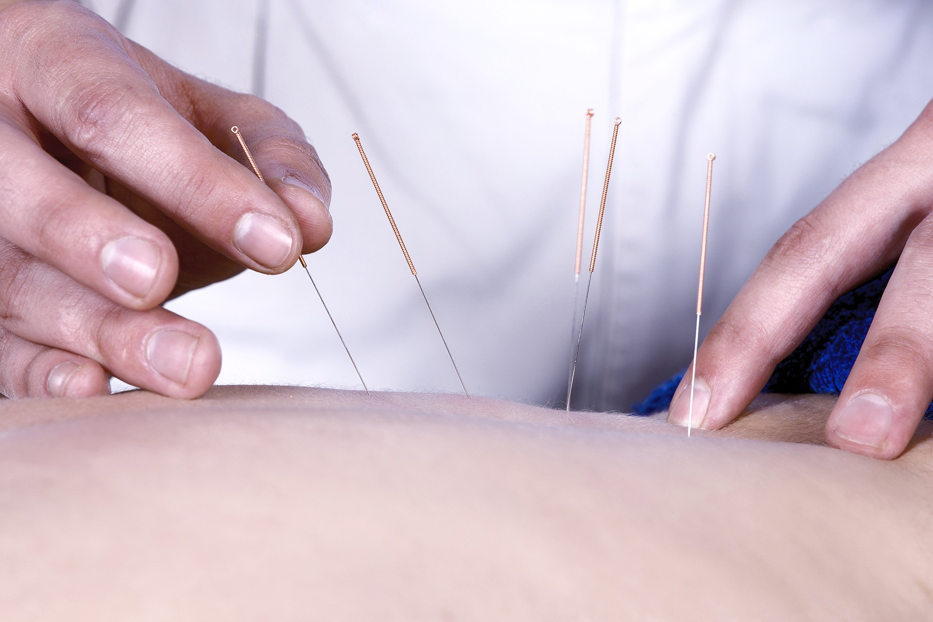 Acupuncture Session - Ketchum (50 min)