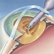 fako-web-gg-banner-göz-oftalmoloji.jpg