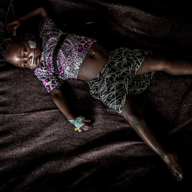 Young girl at field hospital suffering with malnutrition