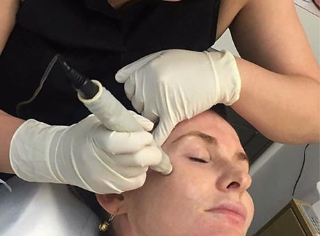 Book in for your Dermapen treatment befo