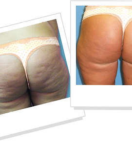 Verju-Before-and-After cellulite reduction