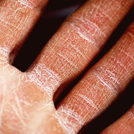 Natural Skincare vs Eczema