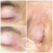 Correzione Vitiligine perioculare