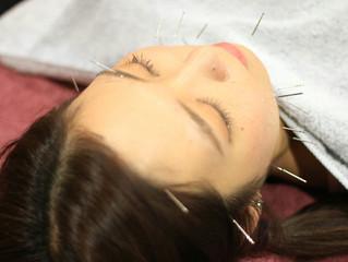 ☆夏のキャンペーン☆恵比寿、『美』にこだわる鍼灸院ブログ