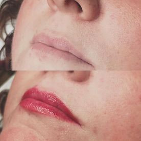 lips before_after.jpg