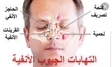 علاج التهاب الجيوب الأنفية المزمن