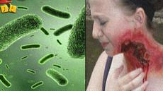البكتيريا آكلة لحوم البشر....
