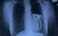 أغرب صور التقطتها الأشعة السينية