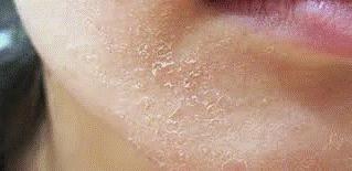 تقشر الجلد