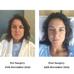 Breast Implant Illness, Breast Explant Story