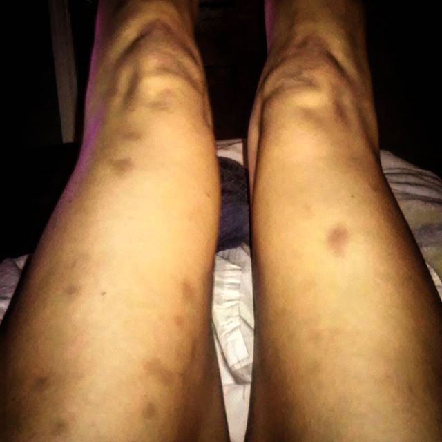 Maybe less bruises tomorrow would be cool