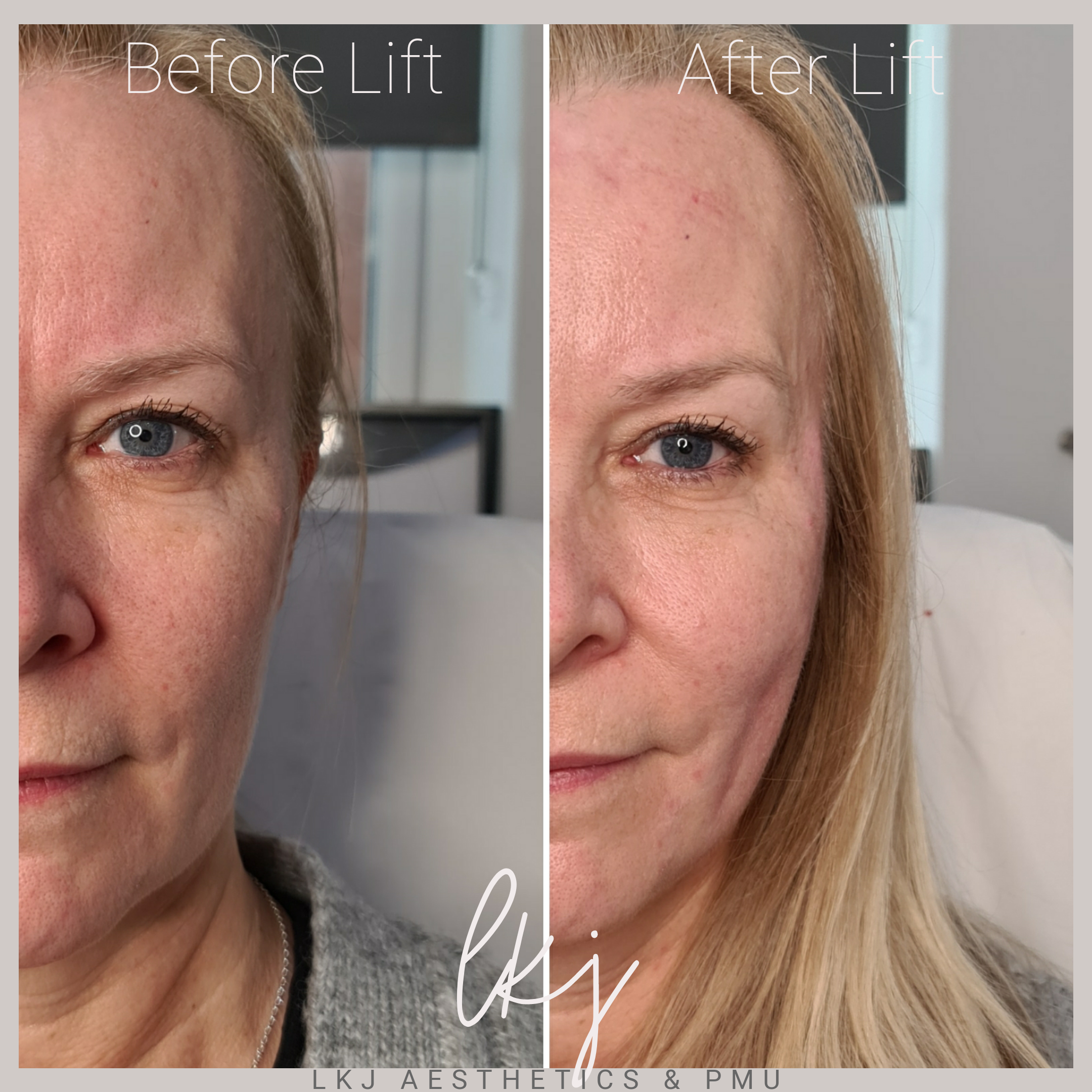 PDO Thread Lift (mid and lower face)